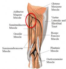 test prop glute pain